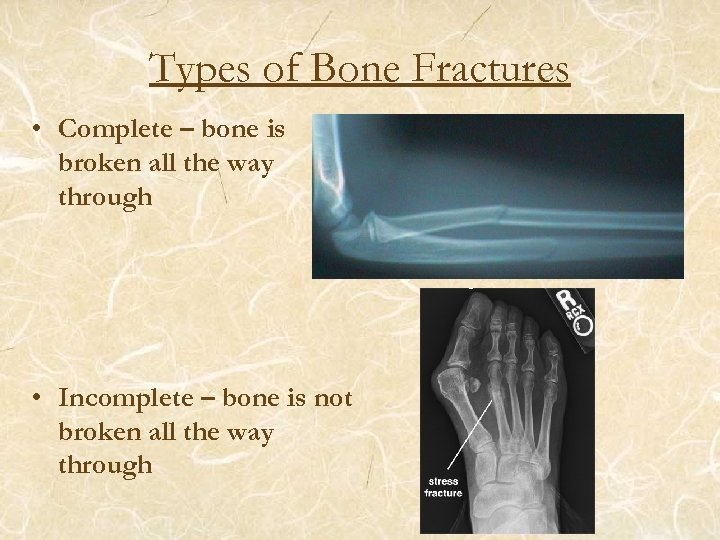 Types of Bone Fractures • Complete – bone is broken all the way through