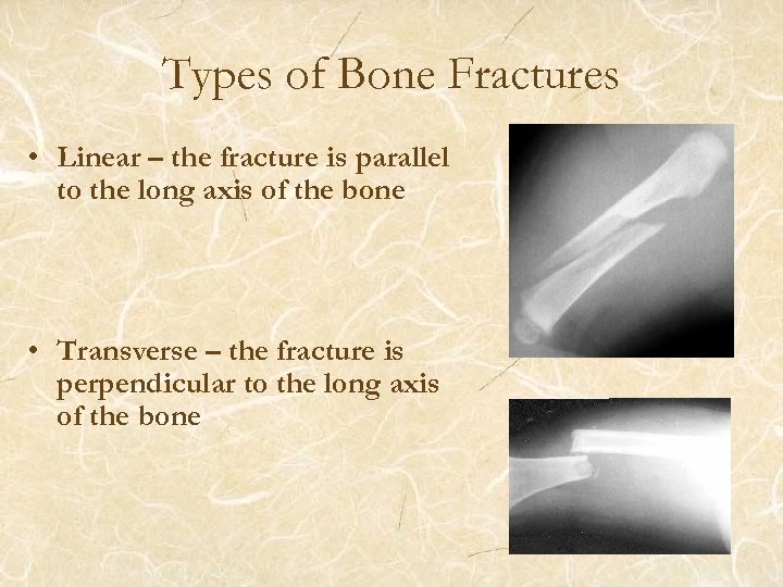 Types of Bone Fractures • Linear – the fracture is parallel to the long