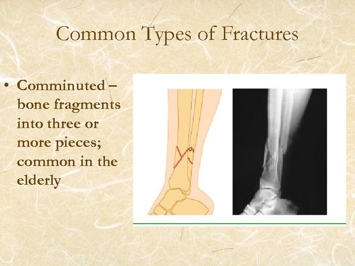 Common Types of Fractures • Comminuted – bone fragments into three or more pieces;