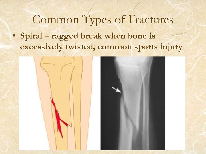 Common Types of Fractures • Spiral – ragged break when bone is excessively twisted;