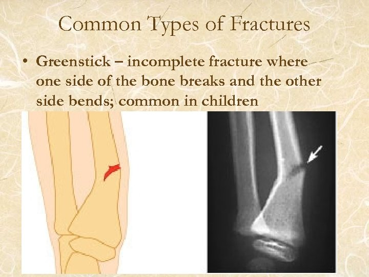 Common Types of Fractures • Greenstick – incomplete fracture where one side of the