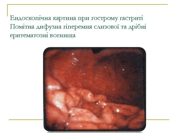 Ендоскопічна картина при гострому гастриті Помітна дифузна гіперемия слизової та дрібні еритематозні вогнища