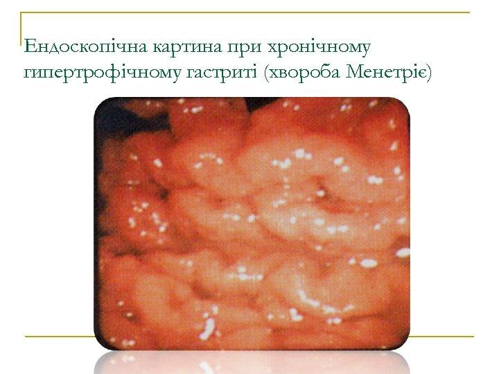 Ендоскопічна картина при хронічному гипертрофічному гастриті (хвороба Менетріє)