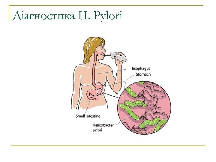 Діагностика H. Pylori