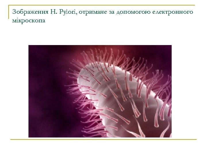 Зображення H. Pylori, отримане за допомогою електронного мікроскопа