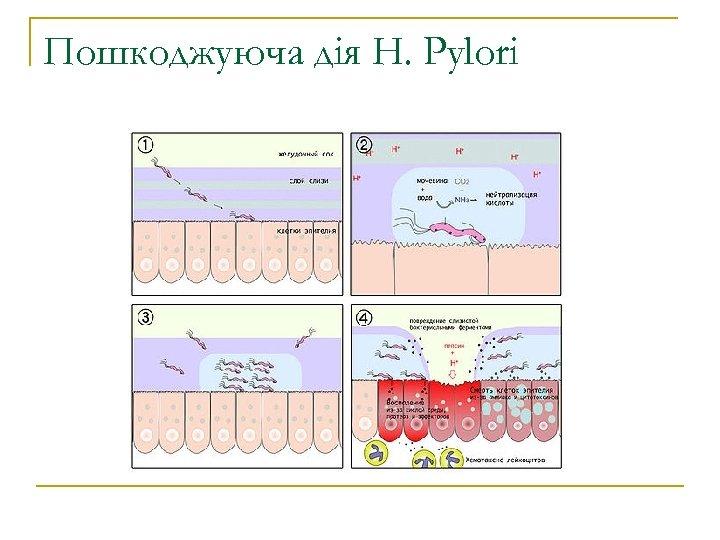 Пошкоджуюча дія H. Pylori