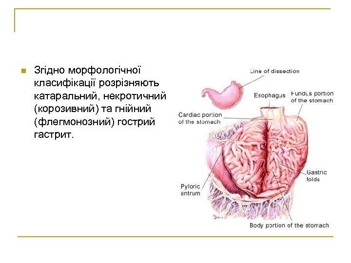 n Згідно морфологічної класифікації розрізняють катаральний, некротичний (корозивний) та гнійний (флегмонозний) гострий гастрит.