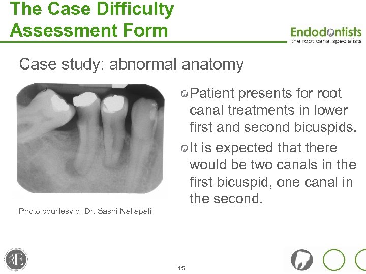 The Case Difficulty Assessment Form Case study: abnormal anatomy Patient presents for root canal