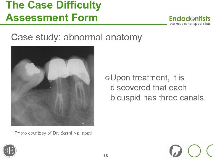 The Case Difficulty Assessment Form Case study: abnormal anatomy Upon treatment, it is discovered