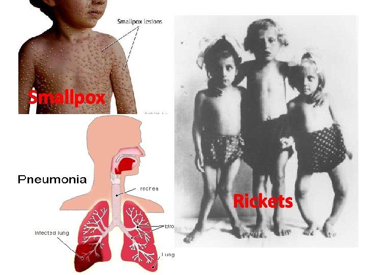 Smallpox Rickets