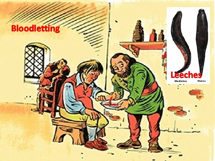 Bloodletting Leeches