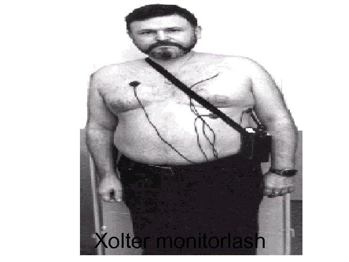 Xolter monitorlash