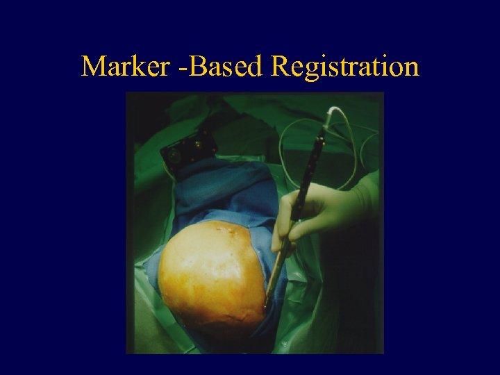 Marker -Based Registration