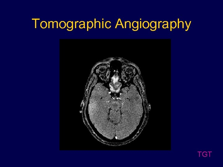 Tomographic Angiography TGT