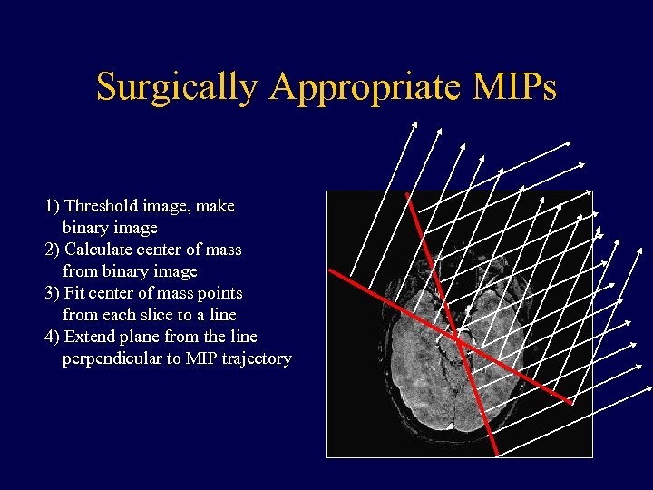 Surgically Appropriate MIPs 1) Threshold image, make binary image 2) Calculate center of mass