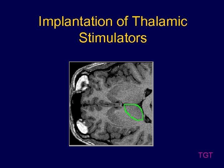 Implantation of Thalamic Stimulators TGT