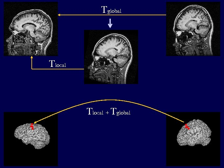 Tglobal Tlocal + Tglobal