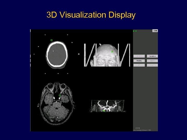 3 D Visualization Display