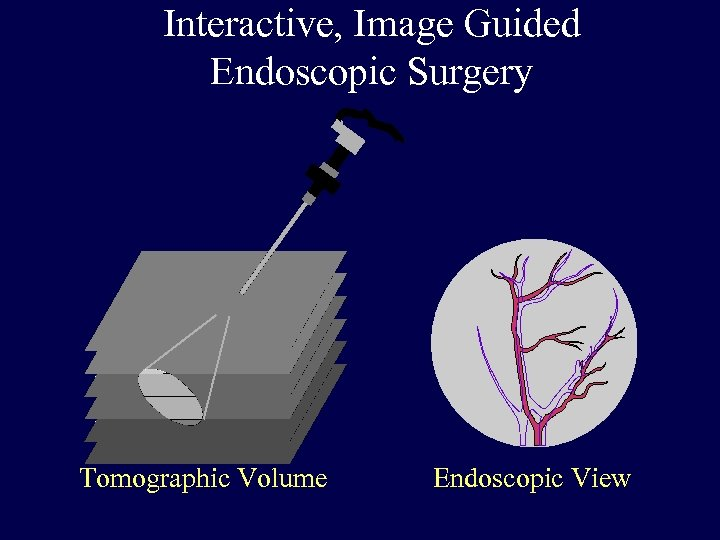 Interactive, Image Guided Endoscopic Surgery Tomographic Volume Endoscopic View