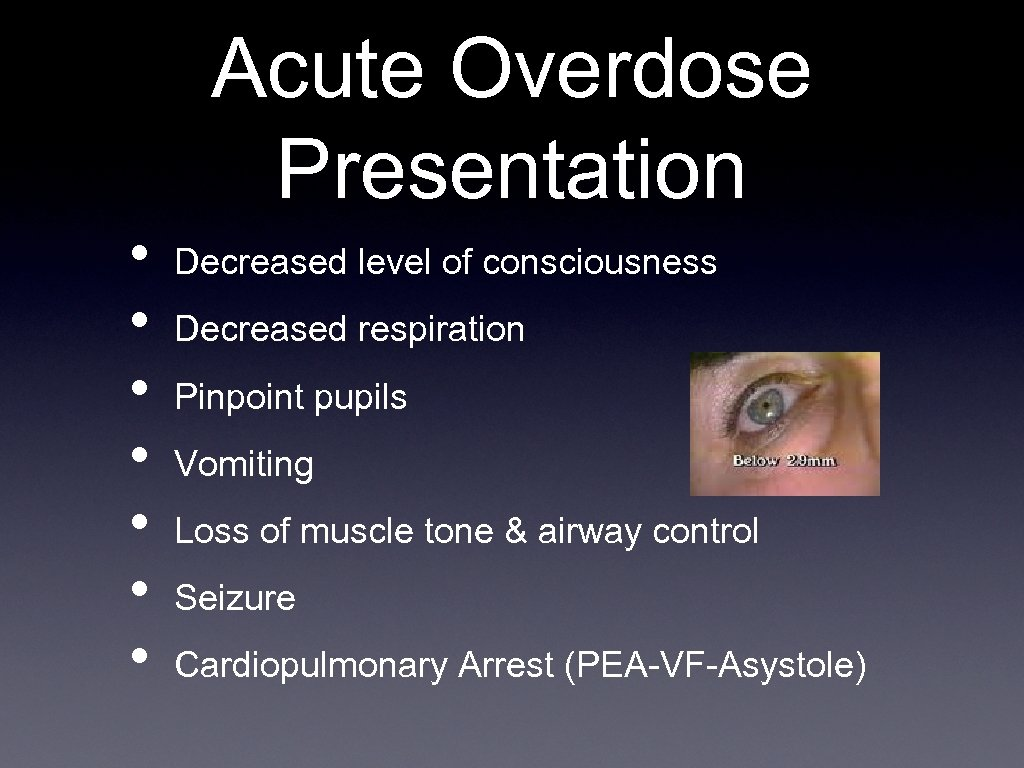 Acute Overdose Presentation • • Decreased level of consciousness Decreased respiration Pinpoint pupils Vomiting