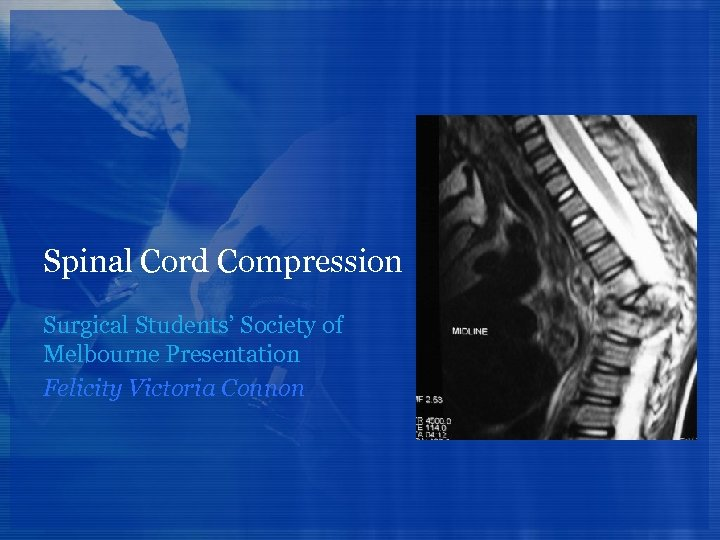 Spinal Cord Compression Surgical Students' Society of Melbourne Presentation Felicity Victoria Connon