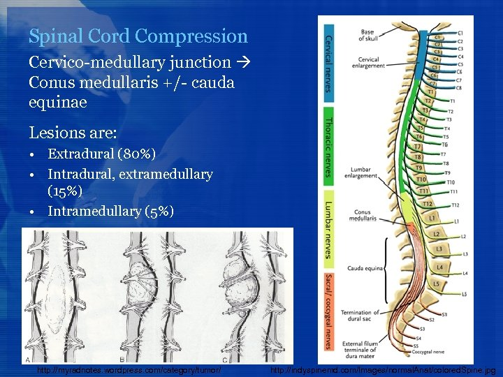 Spinal Cord Compression Cervico-medullary junction Conus medullaris +/- cauda equinae Lesions are: • Extradural