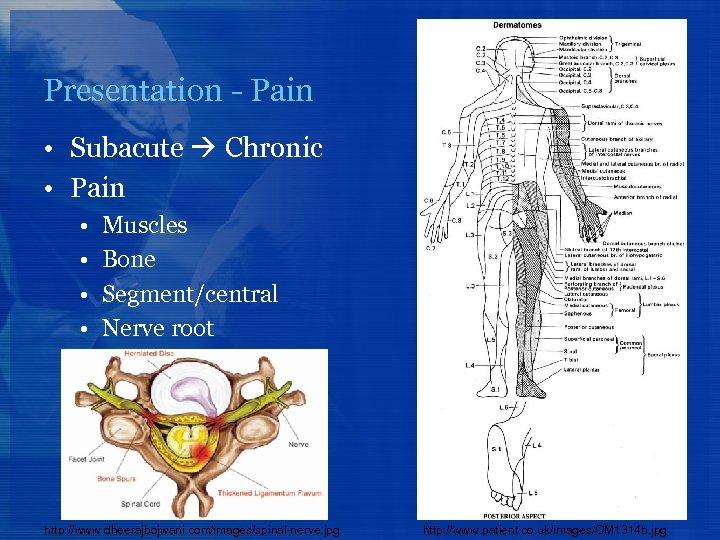 Presentation - Pain • Subacute Chronic • Pain • • Muscles Bone Segment/central Nerve