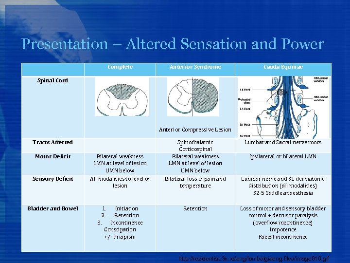 Presentation – Altered Sensation and Power Complete Anterior Syndrome Cauda Equinae Spinal Cord Anterior