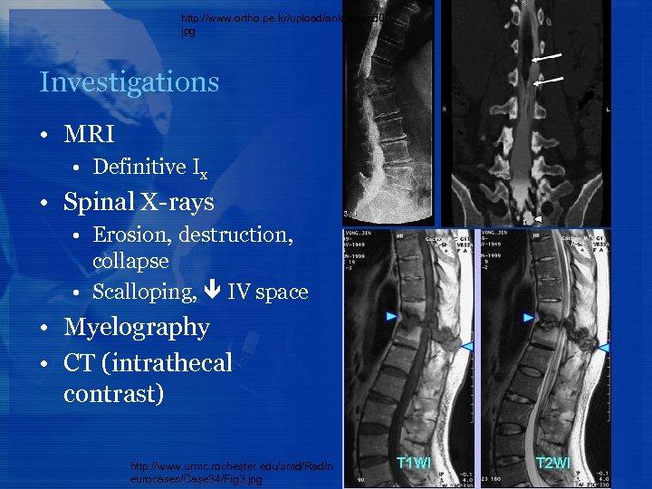 http: //www. ortho. pe. kr/upload/ank_spond 02. jpg Investigations • MRI • Definitive Ix •