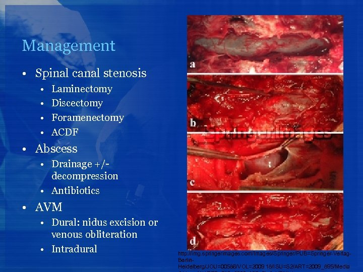 Management • Spinal canal stenosis • • Laminectomy Discectomy Foramenectomy ACDF • Abscess •