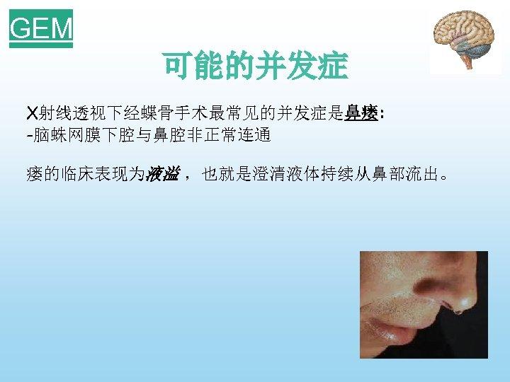 GEM 可能的并发症 X射线透视下经蝶骨手术最常见的并发症是鼻瘘: -脑蛛网膜下腔与鼻腔非正常连通 瘘的临床表现为液溢 ,也就是澄清液体持续从鼻部流出。