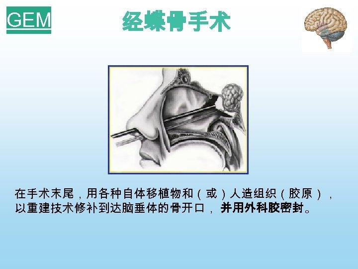 GEM 经蝶骨手术 在手术末尾,用各种自体移植物和(或)人造组织(胶原), 以重建技术修补到达脑垂体的骨开口, 并用外科胶密封。