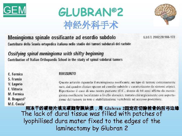 GEM GLUBRAN® 2 神经外科手术 用冻干的硬物片填充硬脑脊膜缺损,用 Glubran 2固定在切除椎骨的后弓边缘 The lack of dural tissue was filled