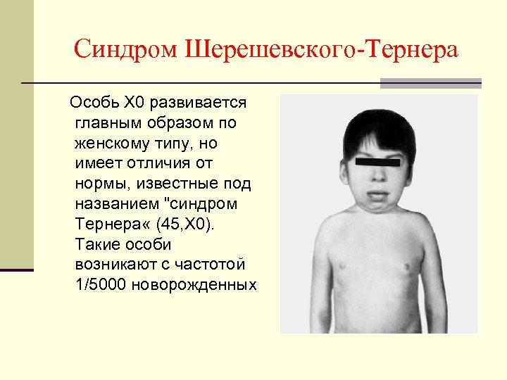 Синдром Шерешевского-Тернера Особь X 0 развивается главным образом по женскому типу, но имеет отличия