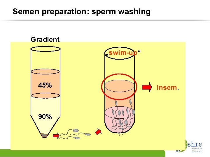"Semen preparation: sperm washing Gradient ""swim-up"" 45% 90% Insem."