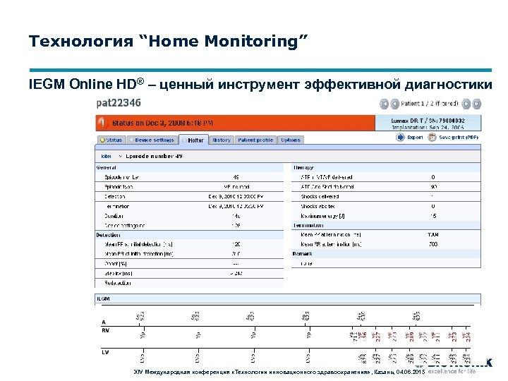 """Технология """"Home Monitoring"""" IEGM Online HD® – ценный инструмент эффективной диагностики XIV Международная конференция"""