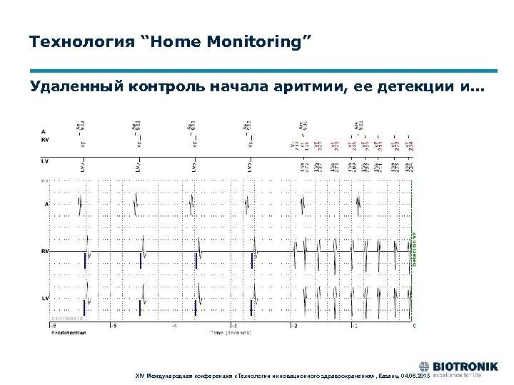 """Технология """"Home Monitoring"""" Удаленный контроль начала аритмии, ее детекции и. . . XIV Международная"""
