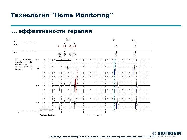 """Технология """"Home Monitoring"""". . . эффективности терапии XIV Международная конференция «Технологии инновационного здравоохранения» ,"""