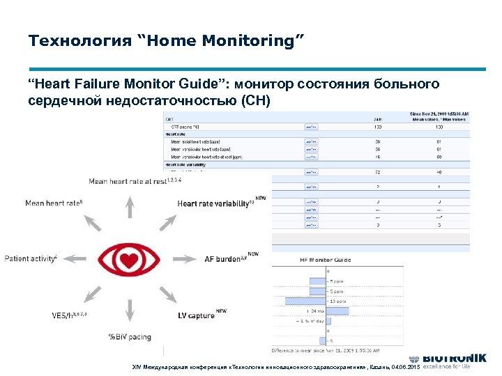 """Технология """"Home Monitoring"""" """"Heart Failure Monitor Guide"""": монитор состояния больного сердечной недостаточностью (СН) XIV"""