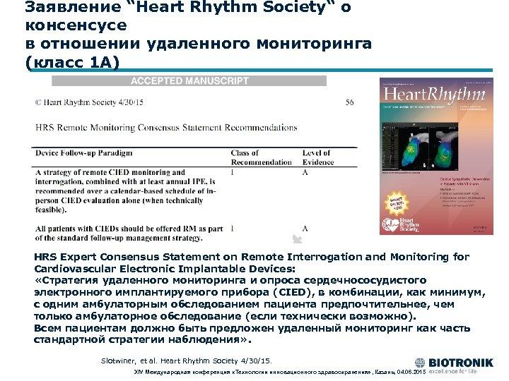 """Заявление """"Heart Rhythm Society"""" о консенсусе в отношении удаленного мониторинга (класс 1 A) HRS"""