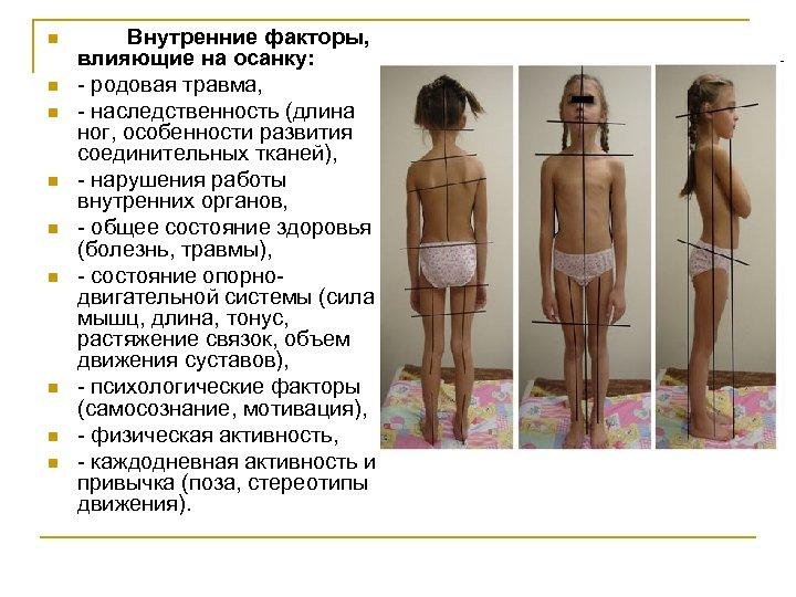 n n n n n Внутренние факторы, влияющие на осанку: - родовая травма, -