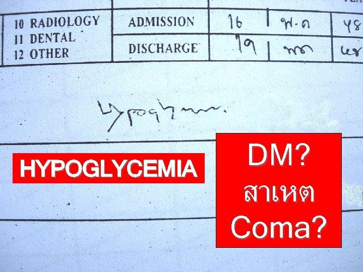 HYPOGLYCEMIA DM? สาเหต Coma?