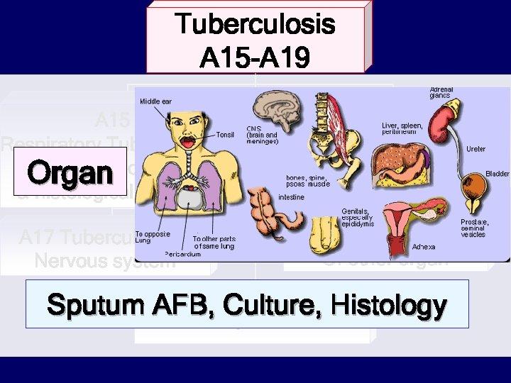 Tuberculosis A 15 -A 19 A 15 Respiratory Tuberculosis, Bacteriological Organ confirm & histologically