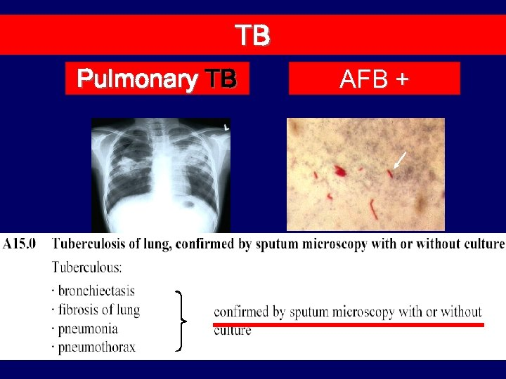 TB Pulmonary TB AFB +