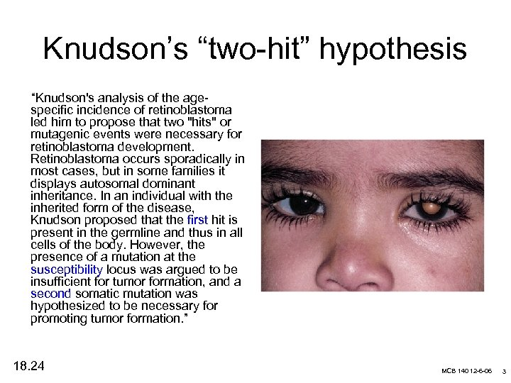 """Knudson's """"two-hit"""" hypothesis """"Knudson's analysis of the agespecific incidence of retinoblastoma led him to"""