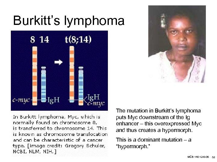 Burkitt's lymphoma The mutation in Burkitt's lymphoma puts Myc downstream of the Ig enhancer