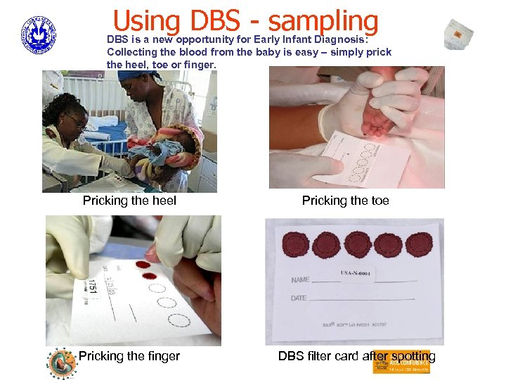 Using DBS - sampling DBS is a new opportunity for Early Infant Diagnosis: Collecting