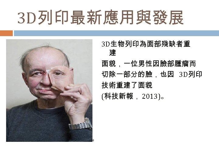 3 D列印最新應用與發展 3 D生物列印為面部殘缺者重 建 面貌,一位男性因臉部腫瘤而 切除一部分的臉,也因 3 D列印 技術重建了面貌 (科技新報, 2013)。