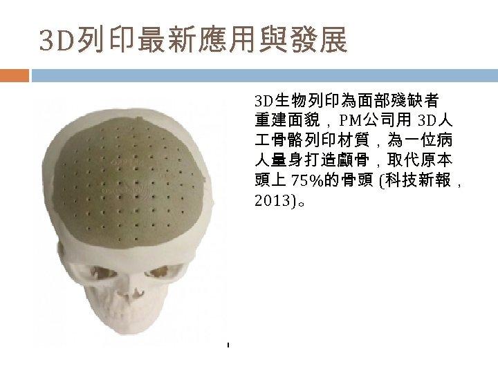 3 D列印最新應用與發展 3 D生物列印為面部殘缺者 重建面貌, PM公司用 3 D人 骨骼列印材質,為一位病 人量身打造顱骨,取代原本 頭上 75%的骨頭 (科技新報, 2013)。