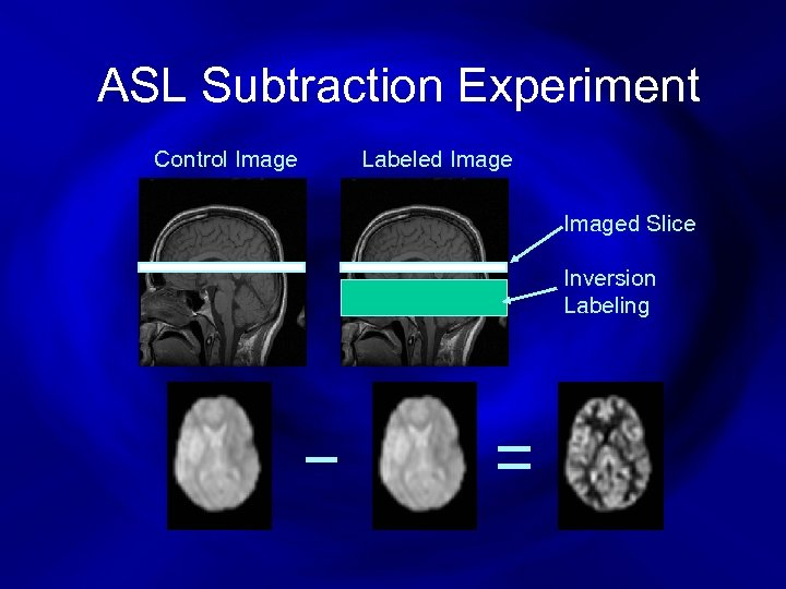ASL Subtraction Experiment Control Image Labeled Imaged Slice Inversion Labeling